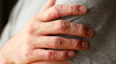 koşullar : Fingers of a man with psoriasis and eczema. A close-up of the skin peeling.
