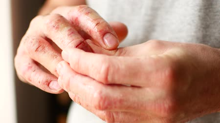уродливый : Fingers of a man with psoriasis and eczema. A close-up of the skin peeling.