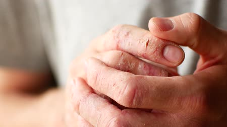 itchy : Fingers of a man with psoriasis and eczema. A close-up of the skin peeling.