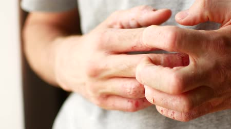 шелуха : The man scratches his hands. Very itchy fingers, psoriasis