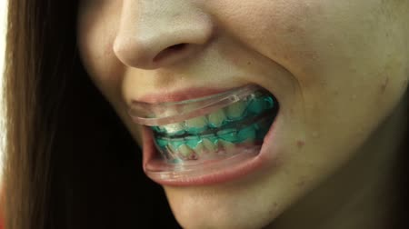 Close-up. Teeth whitening clinic. Girl with a drip in her mouth.