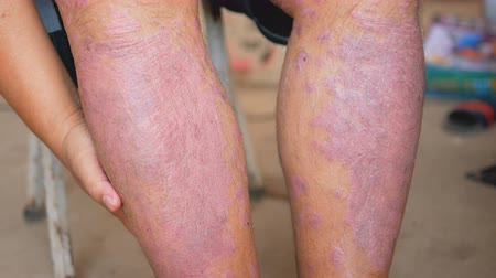lesion : Psoriasis patients use herbal medicines to use their own legs with wounds. Diseases caused by abnormalities of the lymph and a skin disease.