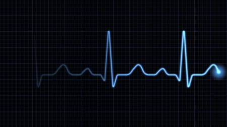 pulso : Electrocardiogram on a blue screen