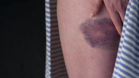 violence : The Female With Bruise