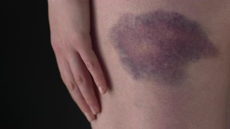 жертва : The Woman With A Bruise