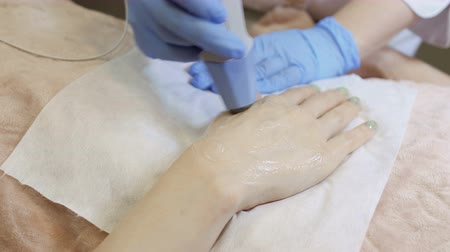 mezoterapia : Rf-lifting procedure on the hand Wideo