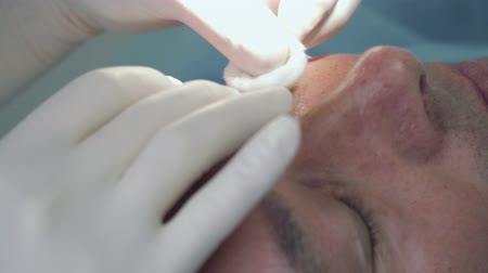 septic : Doctor disinfect the skin of patient before the procedure Stock Footage