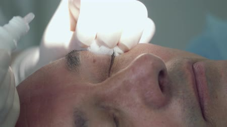 melanoma : Doctor drip drops on eyelid of patient and anesthetizes skin before procedure