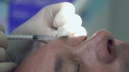surgical instrument : Dermatologist burning mole with laser at the eyelid of patient Stock Footage