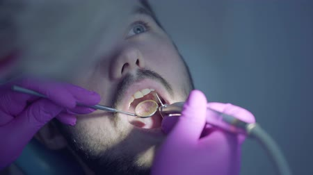 dikkatli : Female gloved hands of dentist checking tooths of bearded patient using mirror close-up. Female professional doctor stomatologist at work. Dental treatment, medical concept. Dental care. Stok Video