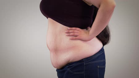 surpoids : Close-up of fat unrecognizable Caucasian woman retracting belly and relaxing. Side view of obese womans body. Obesity, overweight problem.