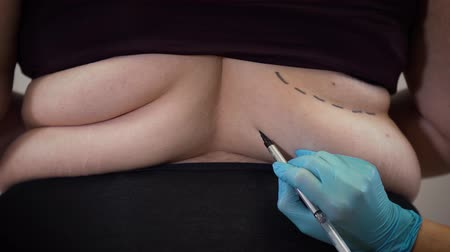 упитанность : Close-up of fat Caucasian female back, hand in medical gloves drawing lines on womans body. Surgeon preparing patient for plastic surgery. Liposuction, medicine, overweight.