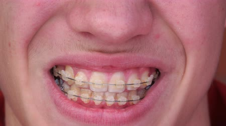 brackets : A young man with braces Smiling, laughing