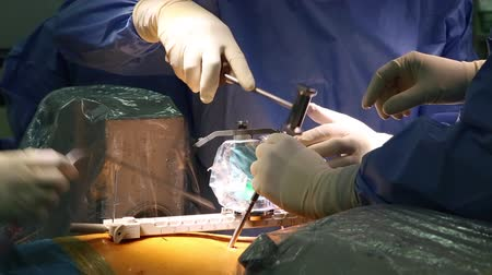 csontok : Robotic spine surgery