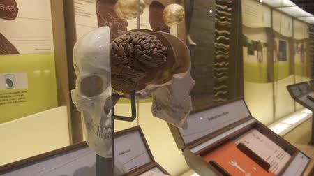 dc : Open Skull With Brain In Museum Exposition - Slide - Left To Right