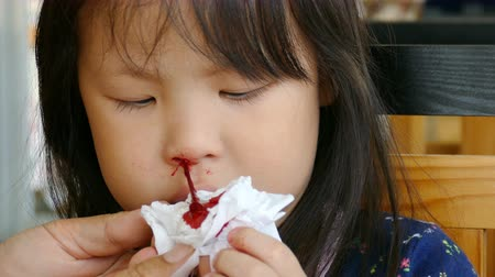 Mother wipe her daughters bleeding nose by tissue paper