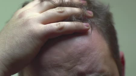 boldness : Man With Dirty Hair Scratching His Head Stock Footage