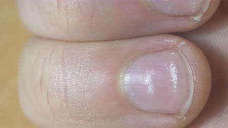 çinko : White spots on fingernails close up Stok Video