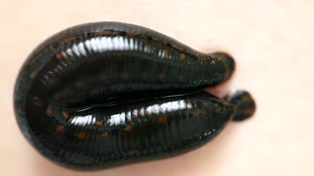 terapia : the procedure hirudotherapy, leech therapy