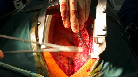 závit : Beating human heart close-up in opened chest during the surgery Dostupné videozáznamy