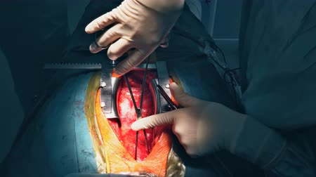 Breast opening during surgical operation. Cutting the chest during an operation on the heart, surgical breast opening during surgical operation.