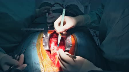 Surgical cutting of the human chest macro Cutting the chest during an operation on the heart
