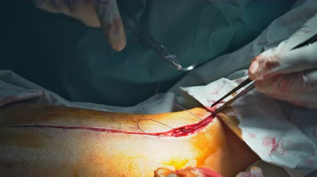 surgical equipment : Surgeons suturing a long on sick patient after performing a serious surgery. Stock Footage