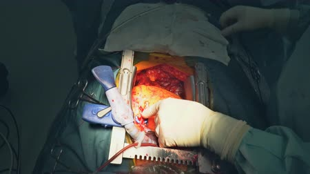 Surgeon with surgical instrument during the open heart operation