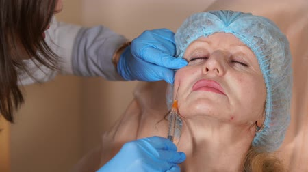 operacja plastyczna : A cosmetologist is a doctor who works in a hospital who injects a cannula into the cheek of a middle-aged woman. The doctor neatly injects implants to increase the volume of soft tissues. Wideo