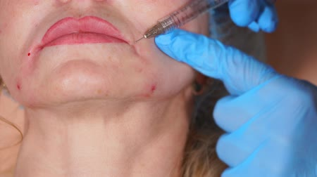 operacja plastyczna : Close up shot of face of a middle-aged woman, where botulinum is injected by the doctor of privat clinic to smooth out facial wrinkles, as well as lip-chin wrinkles