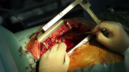 acil durum : The surgeon makes an operation on the heart Stok Video