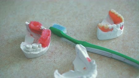 implantation : Models of human jaws with teeth brush lying on the dental workplace in 4K Stock Footage