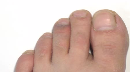 pedikür : The bruise on the toe on white background