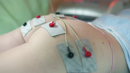 протирать : Removing the electrotherapy suction cups from customer