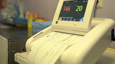 labour ward : We can see the information on the patient monitor. There is the heartbeat. Close-up shot. Stock Footage