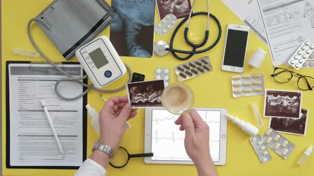 ecg : Top view of the therapists desktop, ECG results on a computer tablet, ultrasound, medicine and health care concept Stock Footage