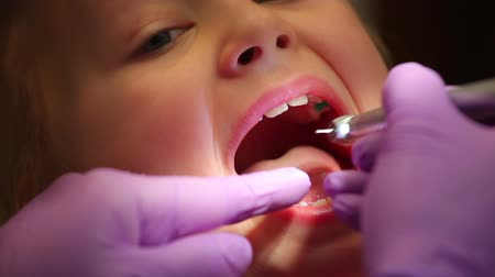 dişçi : Visit at dentist office, woman dentist drilling tooth of little girl patient Stok Video