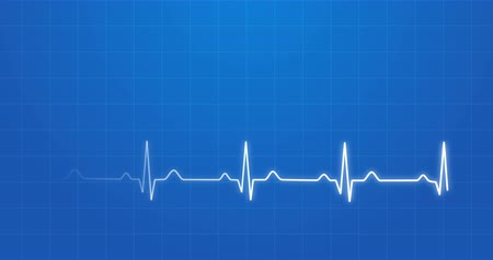 pulso : Blueprint Of Normal Electrocardiogram Graphic 4K Animation Vídeos