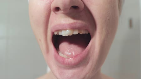 desigual : Woman with uneven dentition, teeth shouting loud, yelling. Mouth of angry yelling woman close up