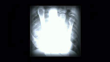 рентгенологическое : finger bones scan,tech medical X-ray scanning software equipment.