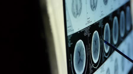 radiologia : doctor study head petct scan for analysis the disease,skull brain X-ray.