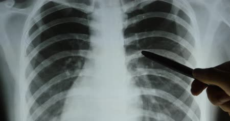 dişli : doctors study ribs,Rib-cage joints X-ray film for analysis.medical health hospital.