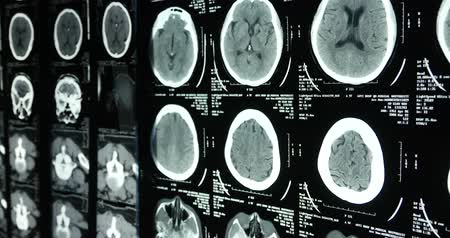 radiologia : Doctors study head skull brain X-ray film for analysis.health medical hospital.