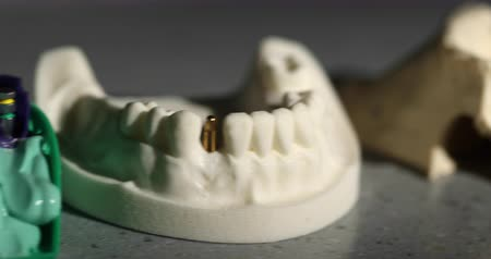 esquerda : Teeth Molds and Models Dolly in a Row. camera moves down the line on a group of molds and models of tooth dentures and crowns. macro Stock Footage