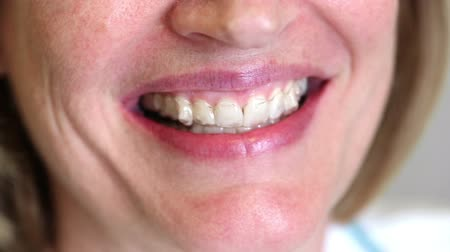 зубы : Female Puts in Invisible Teeth Straighteners. a female puts in clear teeth braces and smiles at the camera. close up