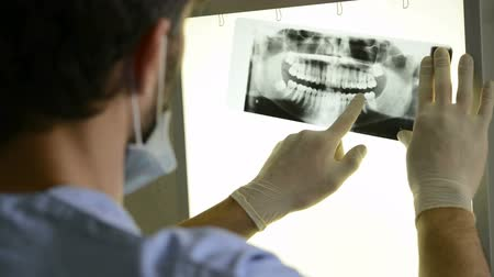 Closeup of dentist looking at dental xray plate. Dental xray plate leaning on the light table while the dentist examines the dental arch. Male Dentist  examines the dental situation of a patient through with dental  xray. Стоковые видеозаписи