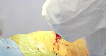 aseptic : Closeup shot of surgical operation on hip. Medicine, surgery, health care concept. Filmed on RED 4k, 10 bit color space