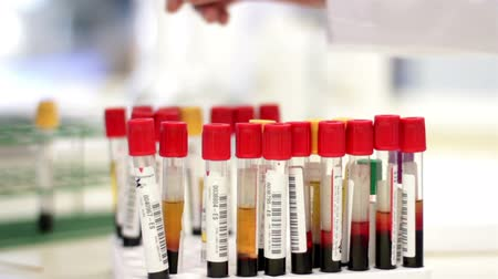 laboratorní plášť : Blood test tubes being analyzed and interchanged by a laboratory worker