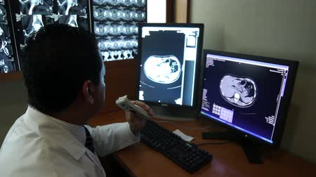 steril : Mexico-September 2014: MEDIUM SHOT-HANDHELD SHOT. Doctor reviewing a CT. Nowadays Mexico has a big challenge about health care due the demand of better hospitals and medical attention. Stok Video
