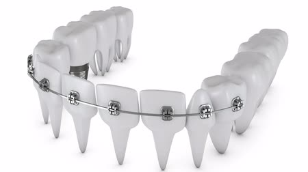 braces on teeth : Animation dental brackets and tooth implant on a white background. 3D render Stock Footage